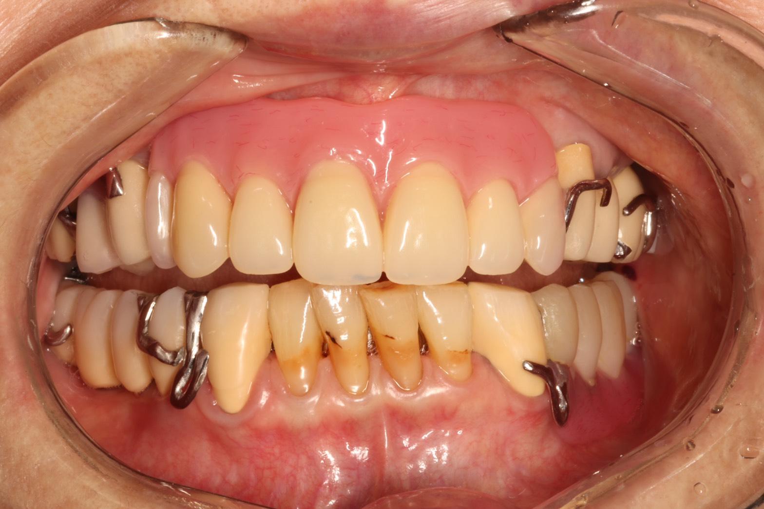 完成直前❗️大規模な口腔内修復編